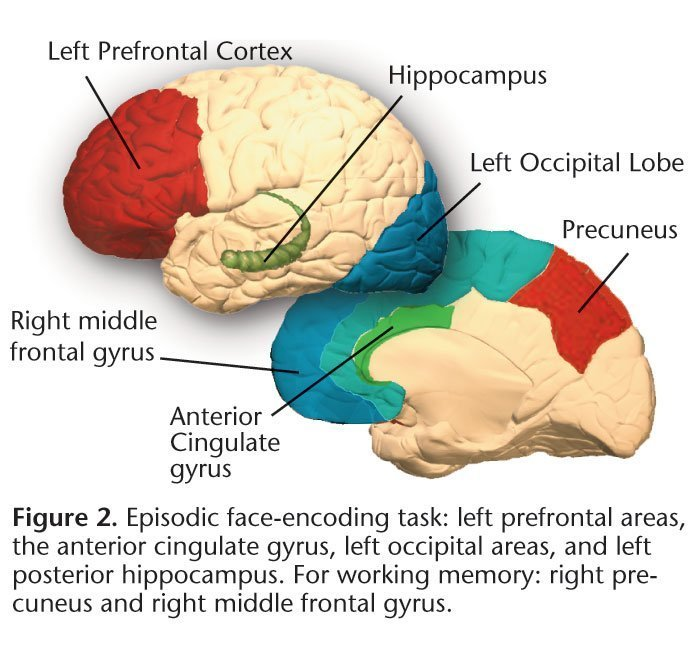 Episodic face-encoding task: left prefrontal areas, the anterior cingulate gyrus, left occipital areas, and left posterior hippocampus. For working memory: right precuneus and right middle frontal gyrus.
